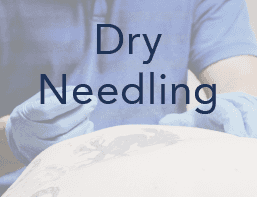 Dry needling Therapy Syracuse NY 13212